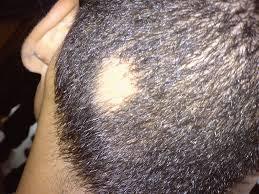 foltos hajhullás